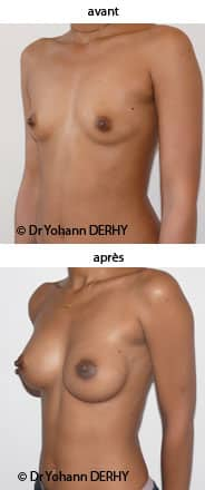 photo augmentation mammaire par implant anatomique