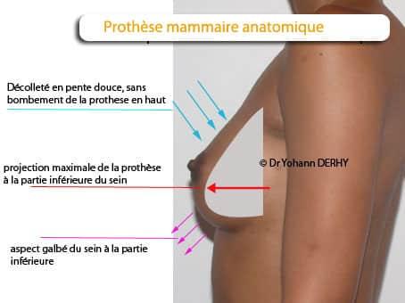 caractéristiques de l'implant mammaire anatomique