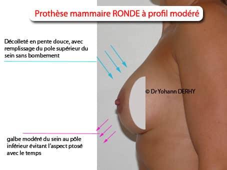 implant mammaire rond profil modéré