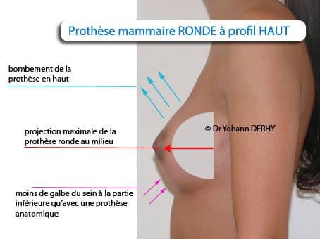 prothèse mammaire ronde profil haut