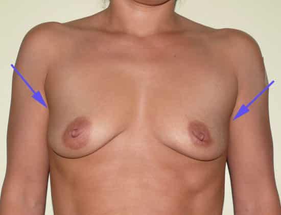 creux axillaire corrigé par prothèse mammaire ronde