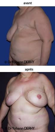 photo reconstruction mammaire diep