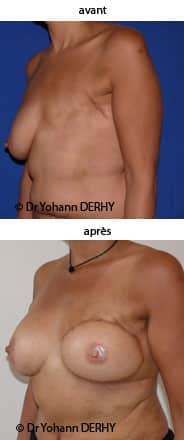 photo reconstruction mammaire grand dorsal