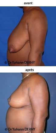 photo hypertrophie mammaire