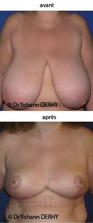 photo reduction mammaire