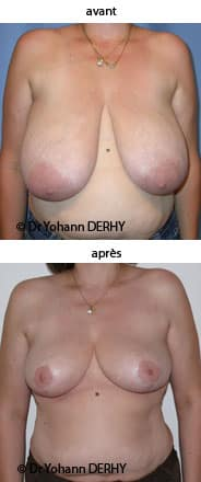 photo réduction mammaire