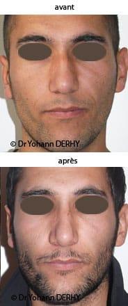 photo rhinoplastie