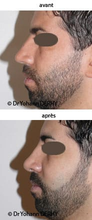 photo rhinoplastie