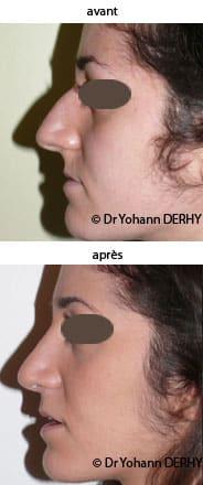 photos rhinoplastie avant-apres
