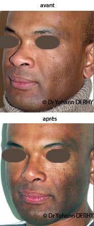photo rhinoplastie ethnique