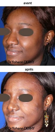 photo rhinoplastie ethnique
