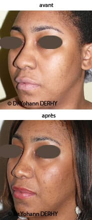 photo rhinoplastie ethnique avant apres