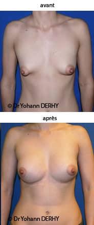 photo seins tubereux