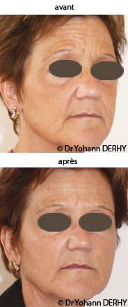 photos botox, photo toxine botulique