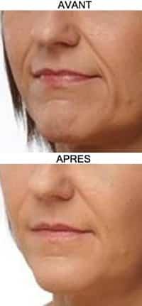 acide hyaluronique plus d'amertume et sillons nasogéniens