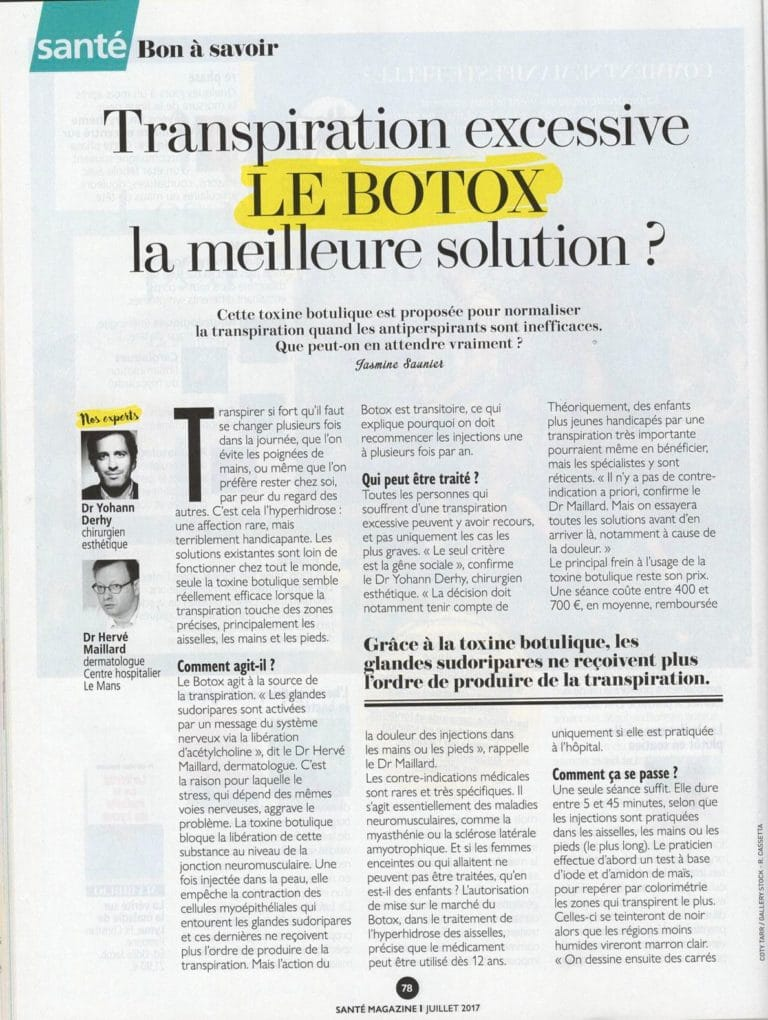 article transpiration excessive botox