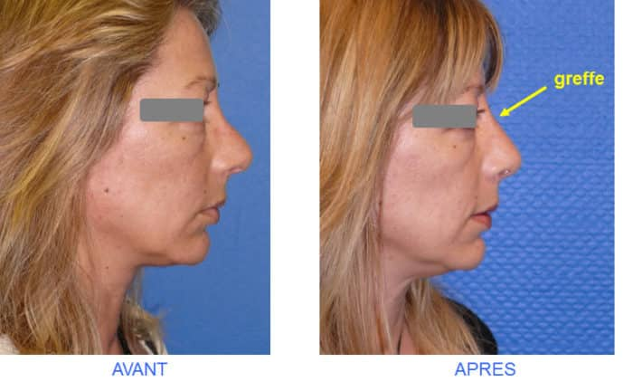 photo avant après de rhinoseptoplastie pour déviation du nez