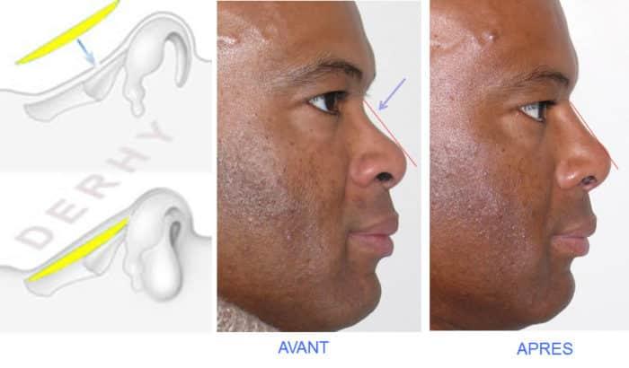 photo avant-après greffe costale pour nez creux