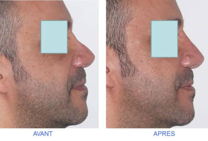 photo avant après nez creux avec ensellure nasale comblée par rhinoplastie médicale avec acide hyaluronique