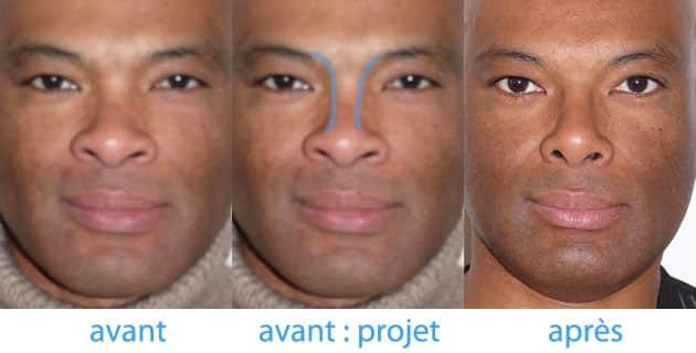 photo avant après de création des lignes de sheen pour nez creux par greffe de cartilage