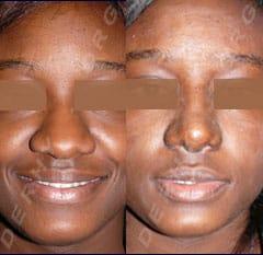 rhinoplastie ethnique : rhinoplastie de la pointe