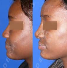 rhinoplastie ethnique - greffe de cartilage